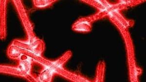 tp-ebola-virus-tekmira