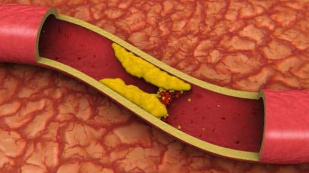 artery-cp-584