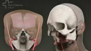 tp-face-surgery-cp-8537583