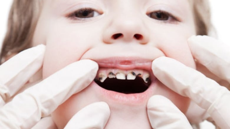 Ugly, awful secret:' Ontario dentists are ducking some patients