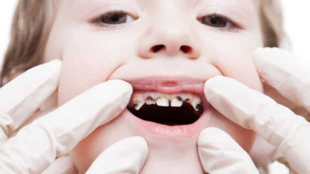More dental care access for Ontario children from low income families