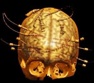 brain-language-model-300
