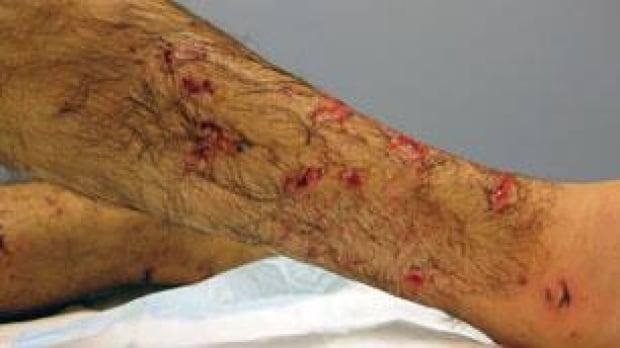 bc-090504-hovaizavi-bite-wounds