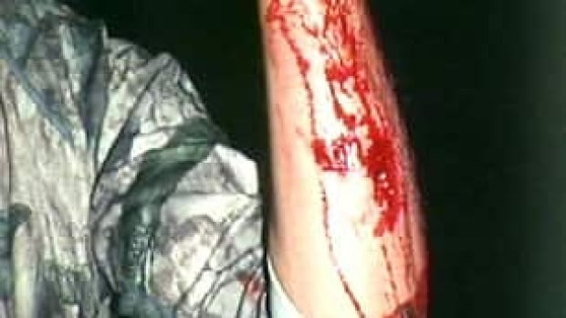 bc-091016-grizzly-forearm-photo