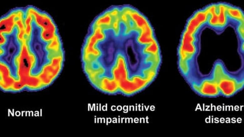 Is There A Test For Alzheimers >> A Blood Test For Alzheimer S Cbc Radio