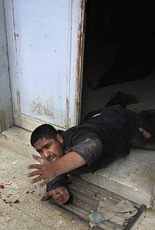 injured-palestinian-cp-250-