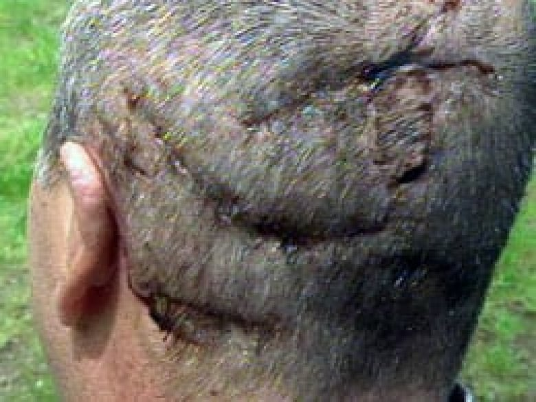 He's eating my brains  I can feel it,' recalls bear attack survivor