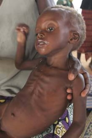 niger_starvingchild_cp_8122447