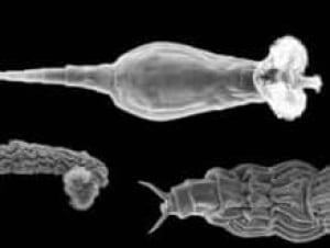 bdelloid-rotifers-070320