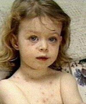 chickenpox-shingles040907