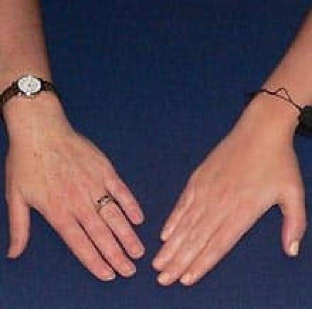 ringhand-comparison060928