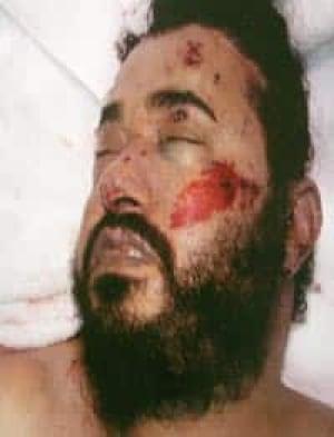 al-zarqawi-dead-cp-1492975