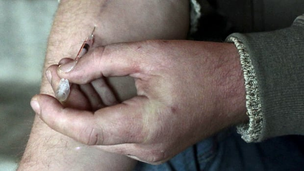 Users of intravenous drugs can develop infections around the injection site that could be mistaken for symptoms associated with krokodil, a homemade substitute for heroin.
