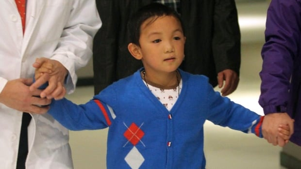 Guo Bin, a six-year-old Chinese boy who lost his sight in an attack, has received prosthetic eyes.
