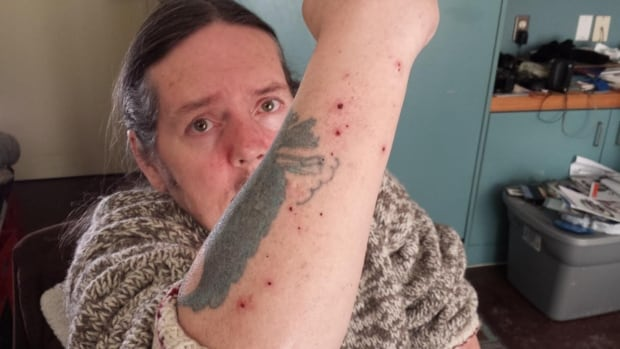 John Stevens says he was told he had to put his clothes on outside the hospital after he was released from the QEII emergency department six weeks ago. Stevens has bed bugs in his Halifax apartment and has been bitten dozens of times.