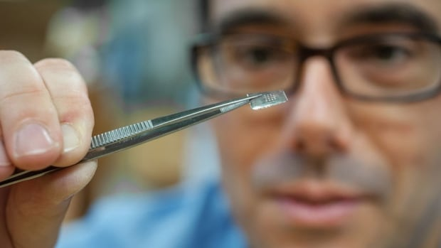 Dr. Boris Stoeber is shown holding up a prototype of an array of microneedles in his lab at the University of British Columbia. Stoeber hopes the small patch will be a painless alternative to hypodermic needles when it comes to delivering medication to the body.