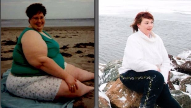 Ann Troop has lost more than 200 pounds but after having her stomach stapled 18 years ago she said she's only half way there.