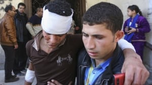 Egypt bombings injured