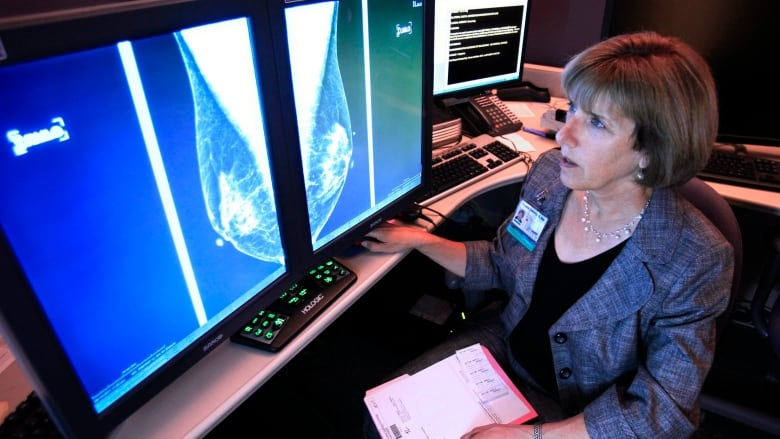 Women with early-stage breast cancer may not benefit from chemo