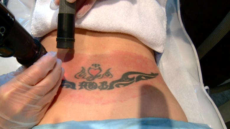 87b44c725 Tamara Lowe has her first laser session to remove a tattoo from a former  flame. (CBC)
