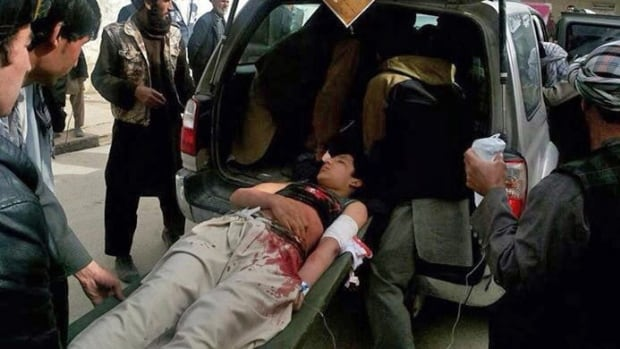 Afghans help an injured man into a vehicle after a suicide attack in Maymana, Afghanistan, Tuesday.  A suicide bomber riding a rickshaw blew himself up outside a checkpoint at a market in the northern region, killing at least 15 people, officials said.