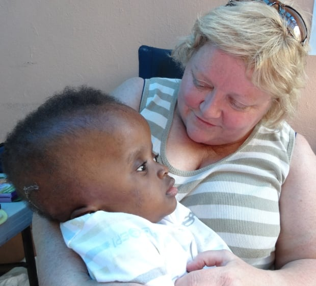 Baby with hydrocephalus at Team Broken Earth hospital
