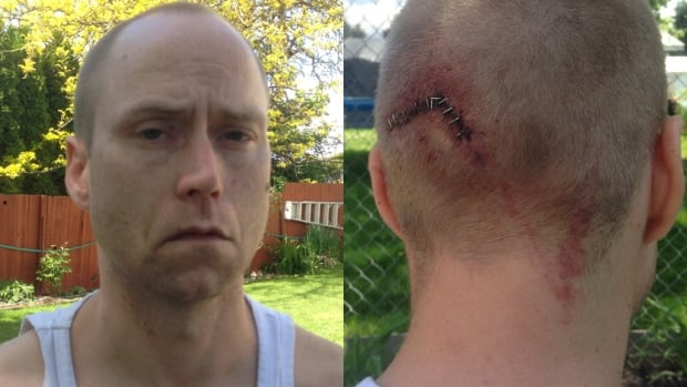 Robert Polyak was savagely attacked after he stopped to help some seemingly stranded motorists in Kelowna, B.C.