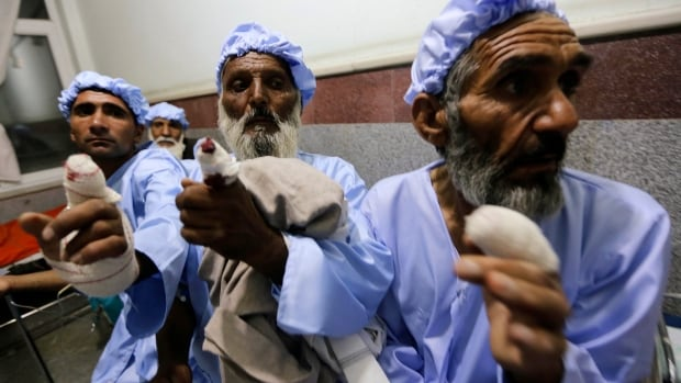 Men show their fingers after the ink-stained part of their fingers were cut off by the Taliban after they took part in the presidential election, in Herat province on Saturday.