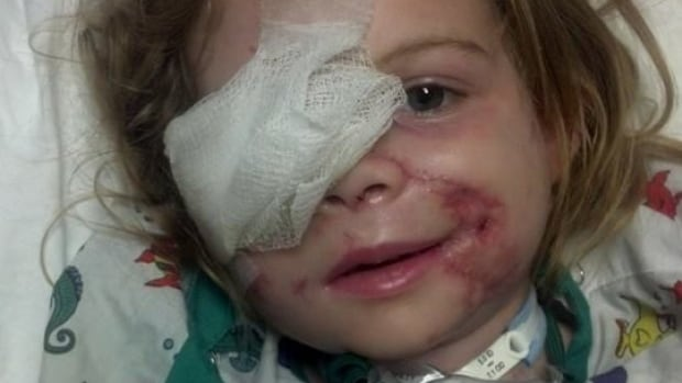 Victoria Wilcher, 3, was attacked by pit bulls at her grandfather's home in early April. About one month after the attack, on May 4, she only had one facial bandage left and was preparing to go back home from the hospital.