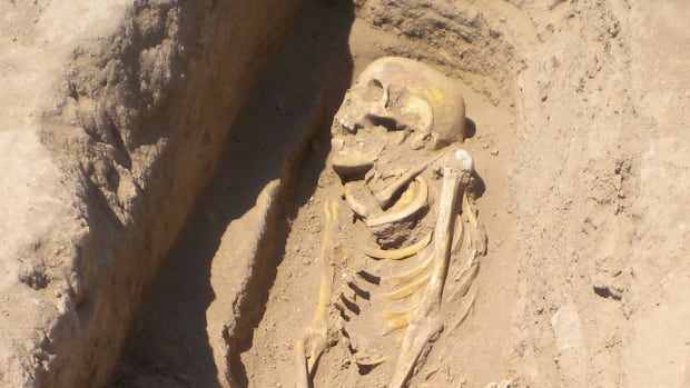 A skeleton more than 6,200 years old lies in a grave in northern Syria in 2010. In it, scientists have found the earliest known evidence of infection with a parasitic worm that now afflicts more than 200 million people worldwide.