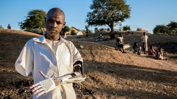 Daniel Omar, a Sudanese teen who lost both arms in a bombing attack, is now able to feed himself thanks to the prosthetic arm designed by Mick Ebeling's Not Impossible team.