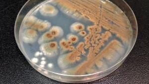 Aspergillis fungus