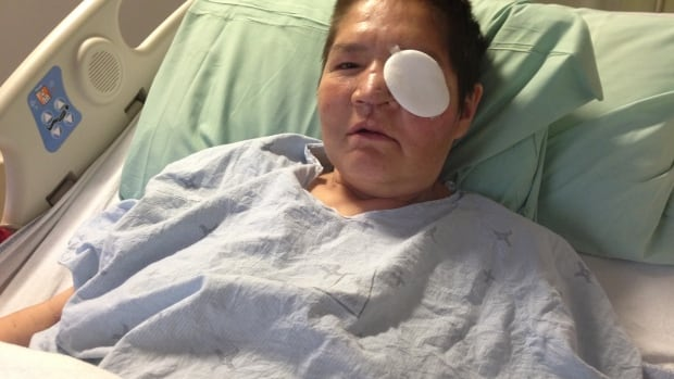 Marlene Bird, the Prince Albert, Sask. woman who suffered horrible injuries from a June 1 assault, continues to recover in a Saskatoon hospital.