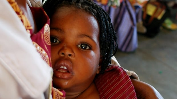 A Mozambique child awaits treatment for malaria at the Manhica Hospital, near the capital Maputo. Malaria, a mosquito-borne parasitic disease, kills more than  600,000 people a year, mainly babies in the poorest parts of sub-Saharan Africa.