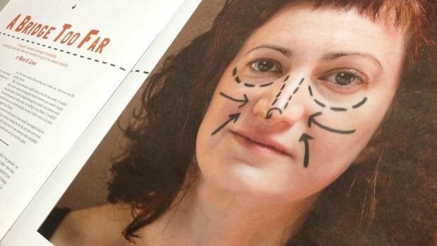 In A Bridge Too Far: The story of my big Jewish nose, 38-year-old Naomi Lewis wrote about her experience getting a nose job at age 14, sharing the experiences and complicated relationships between others in her life and their noses.