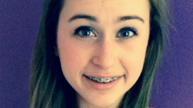 Caroline Lorette, 14, died from anaphylaxis