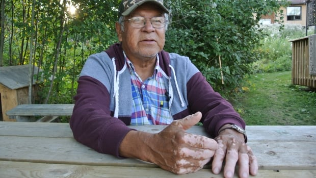 'Everyone is suffering' from the mercury poisoning, Bill Fobister, 68, of Grassy Narrows First Nation told CBC News last fall when Japanese mercury experts visited the community.