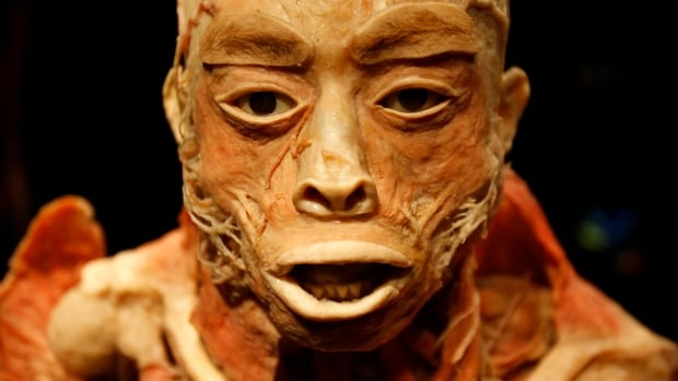 Plastination is a process used in anatomy exhibits around the world to preserve human bodies for display.