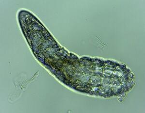 Demodex folliculorum face mite