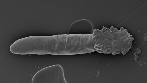 Face mites, like this one shown in an electron microscope image, appear to live on the faces of all adult humans.