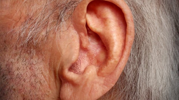 The cheques for hearing loss are one-time payments from Veterans Affairs Canada that are tax free and range from approximately $800 to $134,000, depending on the severity of the hearing loss.