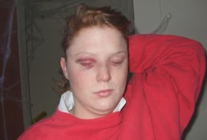 Cirbie Bishop injuries