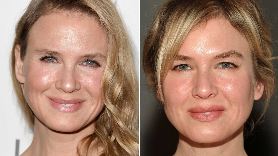 renee zellweger slams media speculation about plastic surgery renee zellweger slams media speculation about plastic surgery entertainment news
