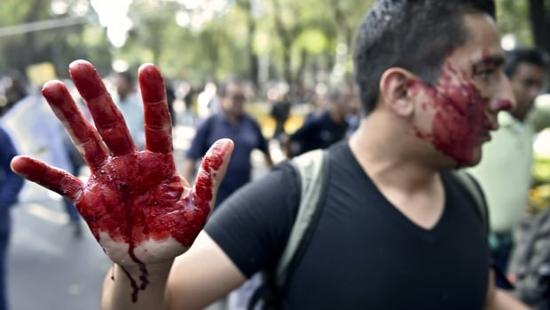 A student with mock blood on his hands and face participates in a protest demanding information of the whereabouts of the 43 missing students in Mexico City.