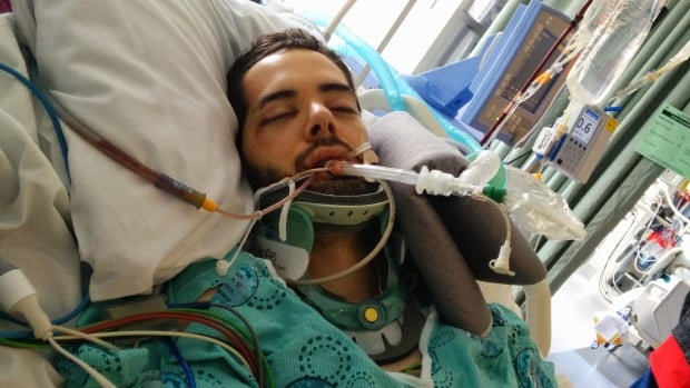 Mathieu Trudel, 36, was in a medically induced coma for several days after the Oct. 30 crash.