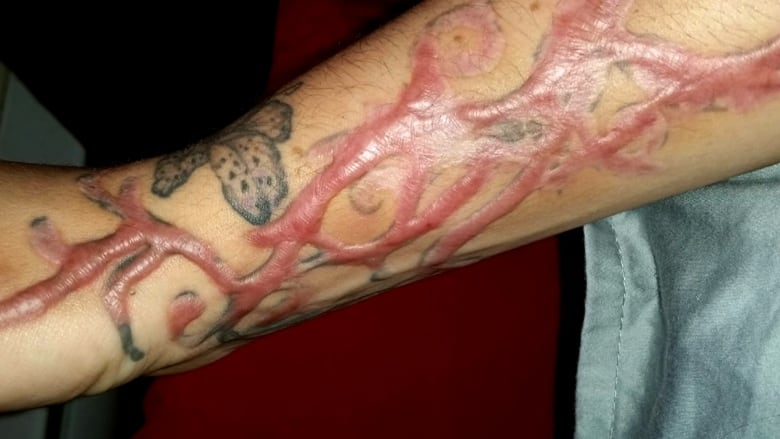 Tattoo Removal Procedures Leave Clients Horrified Scarred For
