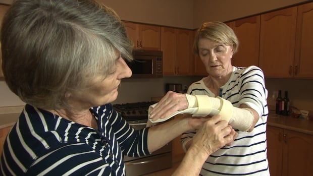 Kathy Gannon is helped with her bandages by her sister Patricia Ann Gannon, a retired nurse, in Guelph.