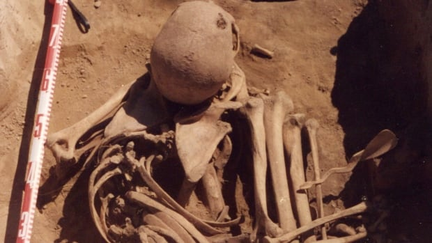 Scientists find ancient case of human cancer in man who died 4,500 years ago