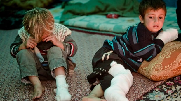 Amnesty International condemned the world's wealthy nations Friday for not doing enough to help Syrian refugees like these injured Kurdish boys from Kobani, shown here last month taking refuge across the Turkish border after an ISIS mortar attack hit their family.  Canada will struggle to keep its commitment to resettle 1,300 Syrian refugees by the end of the year, CBC News reported Thursday.