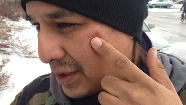Simon Ash-Moccasin points to a mark on his face that he says the Regina police caused.